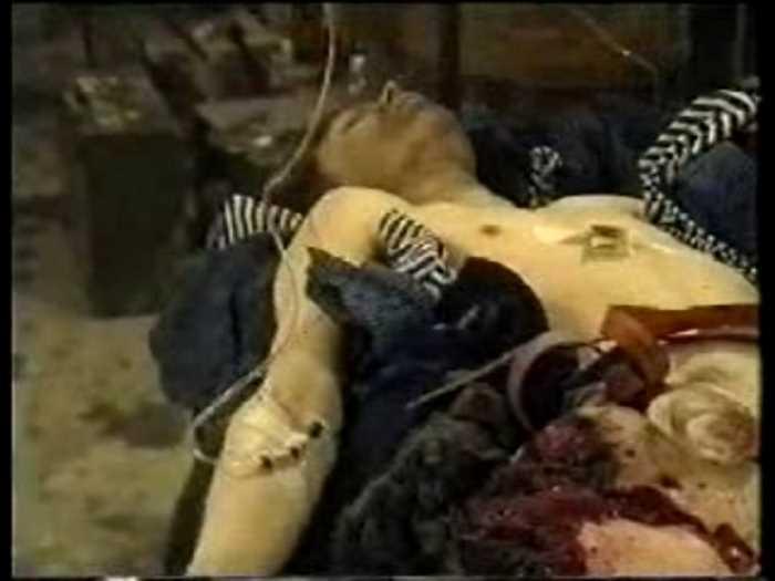 Наши раненые парни в Чечне
