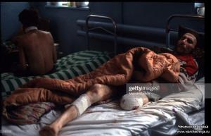 A captured Russian soldier lies in the hospital January, 1995 in Shali, Russia